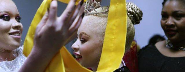 Albinism pageant in Zimbabwe joyfully breaks down prejudice